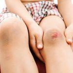顔や足の傷跡を早く消す方法【市販薬・自然療法・専門治療編】