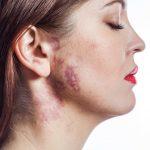 生まれつきある赤あざ(血管腫)はレーザー治療で消せるの?