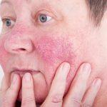 赤ら顔を治したい!赤ら顔の原因を知って皮膚科で治療しよう