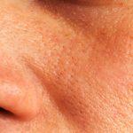 【女子の天敵】頬の毛穴開きが目立つ原因と改善法を知ろう