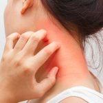 首の周りに赤く湿疹・・金属アレルギーの調べ方と治し方を教えて!